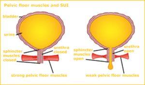 Εικόνα 4: Στην 1η εικόνα απεικονίζεται το φυσιολογικό πυελικό έδαφος, ενώ στη 2η το εξασθενημένο