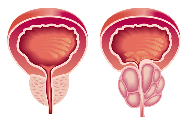 hyperplasia_prostate
